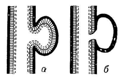 Аневризма: а — истинная; б — ложная. Аневризма.