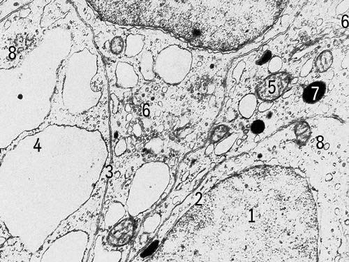 Клетки щитовидной железы крысы с включениями (увеличено в 18000 раз). Условные обозначения: 1 — ядро, 2 — ядерная оболочка, 3 — клеточная оболочка, 4 — эндоплазматическая сеть, 5 — митохондрии, 6 — комплекс Гольджи, 7 — плотные тела, 8 — рибосомы. Клетка.