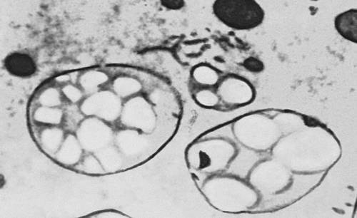 Рис. 2. Зёрна крахмала в развивающейся клетке эндосперма риса. Крахмал.